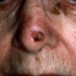 seborrheic keratosis face