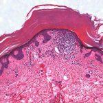 hyperkeratosis lenticularis perstans