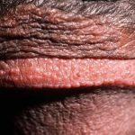 pearly penile papules symptoms