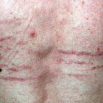 skin striae