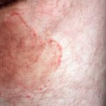 what is tinea cruris
