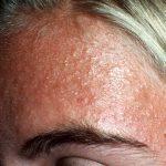 facial folliculitis