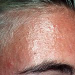 scalp folliculitis pictures