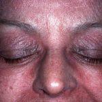 dermatomyositis picture