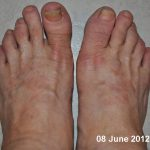 tops of feet itchy