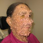 neurofibromas pictures