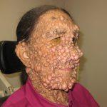 neurofibromas pictures