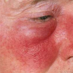 erysipelas symptoms
