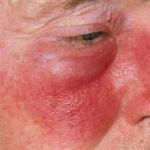 erysipelas symptoms
