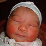 neonatal acne