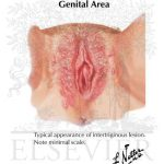 contact dermatitis on genital area
