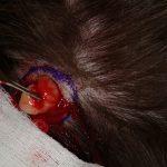 pilar cysts images