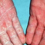 rash on hands and feet