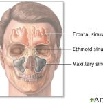 sinuses pain behind eyes