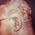 seborrheic dermatitis of the scalp