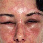 angioedema causes