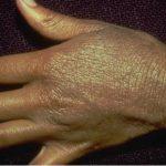 lichenification skin