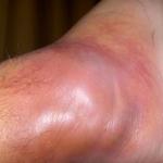 staph dermatitis
