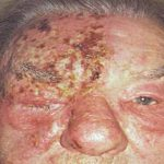 herpes in eyes pictures