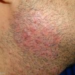 tinea barbae treatment