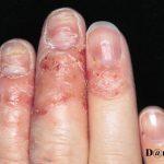 nail layers