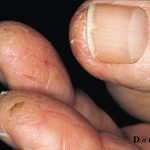 contact dermatitis on hands