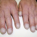 problems with fingernails