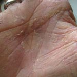 peeling skin on palms of hands