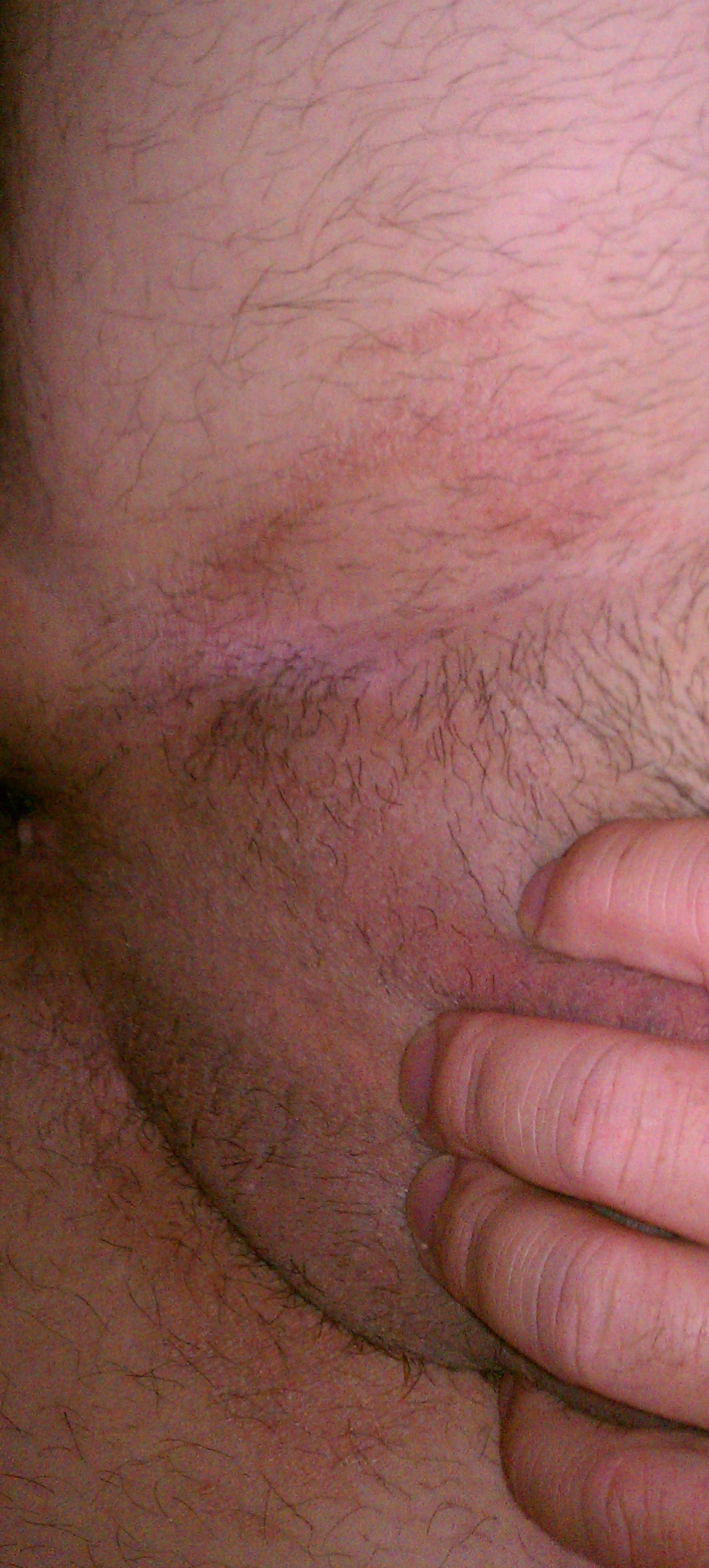 Groin Rash Pictures
