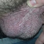 psoriasis on scrotum