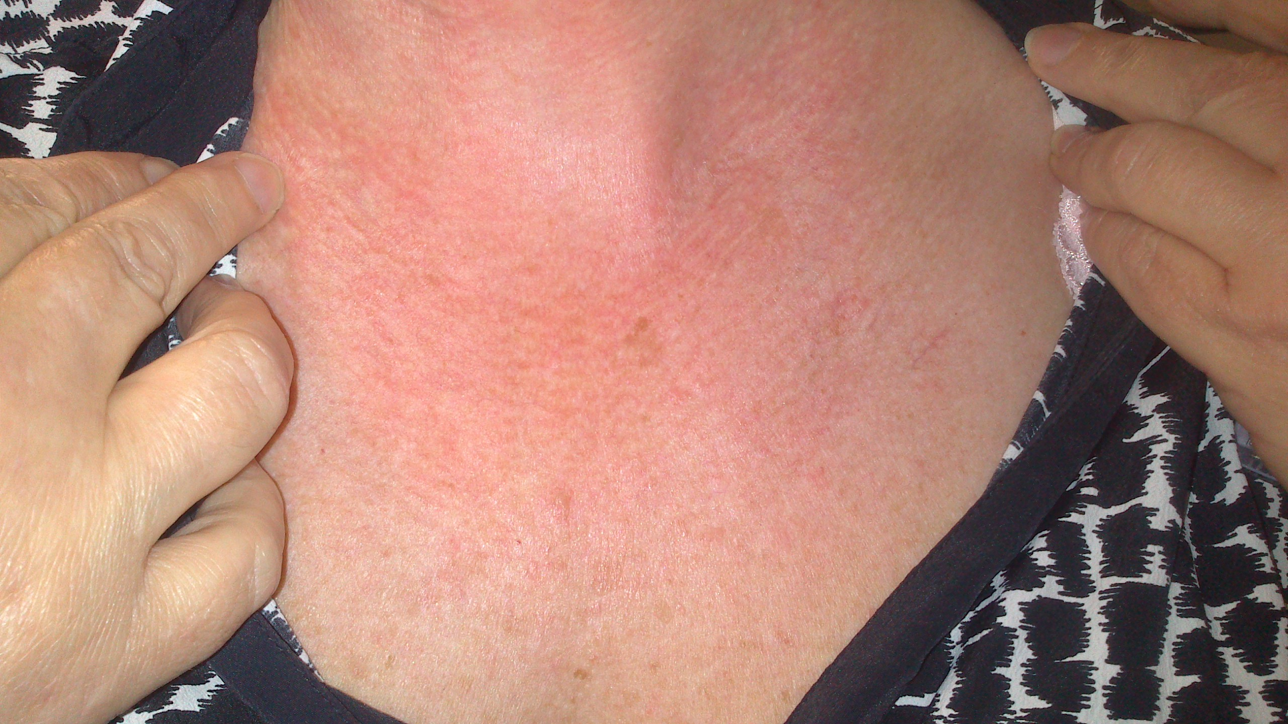 Rashes On Neck And Chest - Pictures, Photos