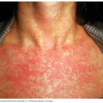 rubella rashes