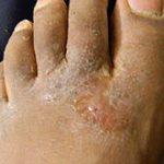 foot rash on top of foot