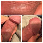 psoriasis on penile head pictures