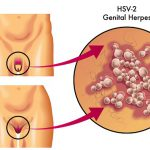 oral herpes images