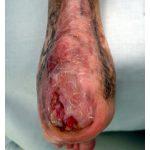chronic ulcer