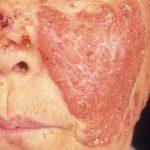 skin tuberculosis
