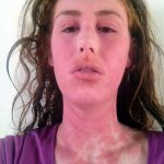 steroids creams for eczema