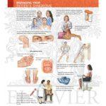 reiters syndrome