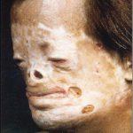 congenital erythropoietic porphyria