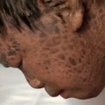 scales disease