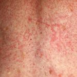 drug allergy rashes pictures
