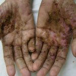 picture of scabies
