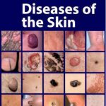 types of skin diseases