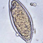 schistosomiasis picture