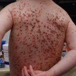 chicken pox stages
