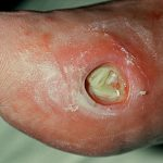 diabetic ulcers pictures