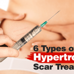 hypertrophic scarring treatment