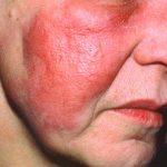 skin infection antibiotics
