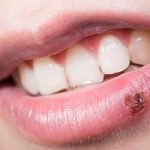 cold sore images